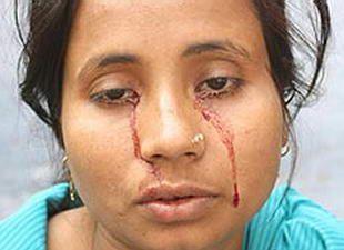 少女 世界 恐怖 印度/拉希达·卡通的眼泪竟是红色鲜血